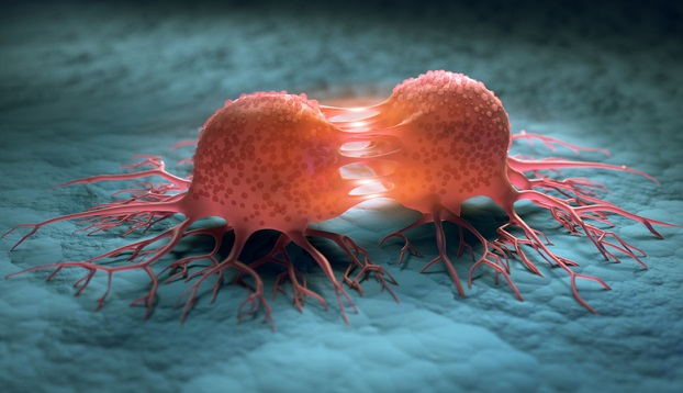 Kenali Gejala Kanker Sejak Dini